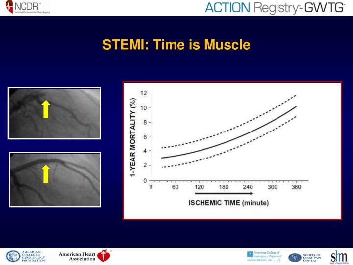 Stemi time is muscle l.jpg