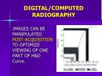 digital computed radiography