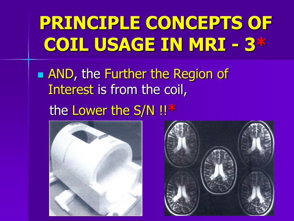 PRINCIPLE CONCEPTS OF COIL USAGE IN MRI - 3