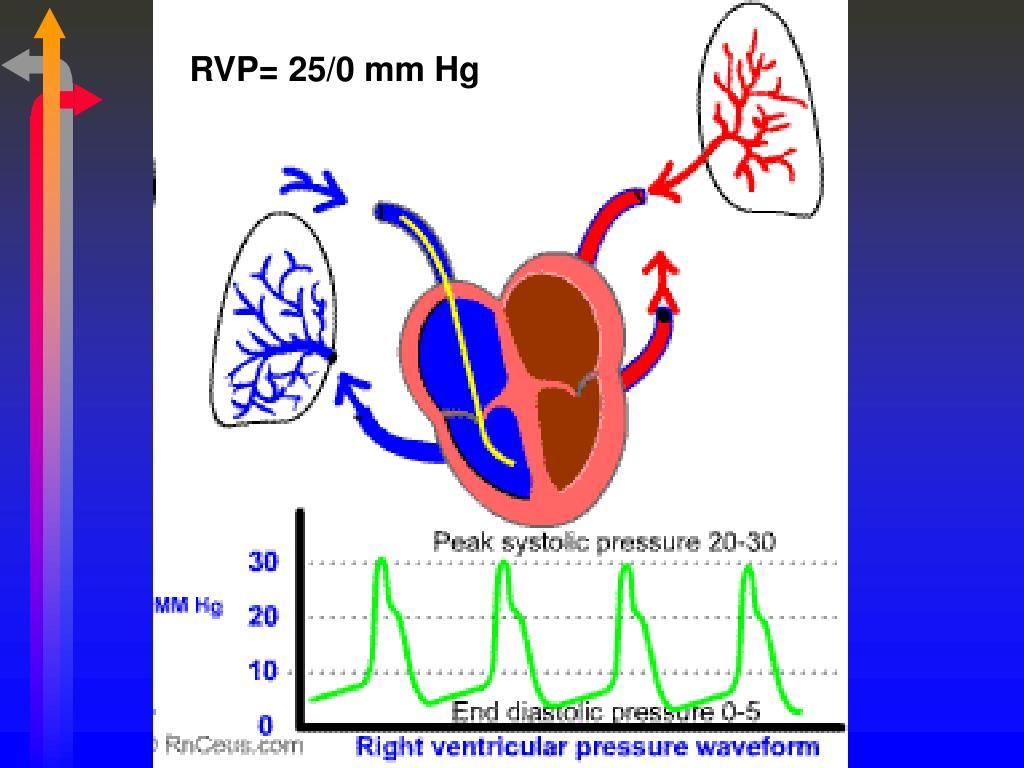 RVP= 25/0 mm Hg