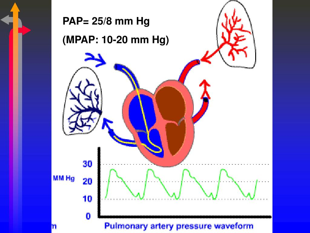 PAP= 25/8 mm Hg