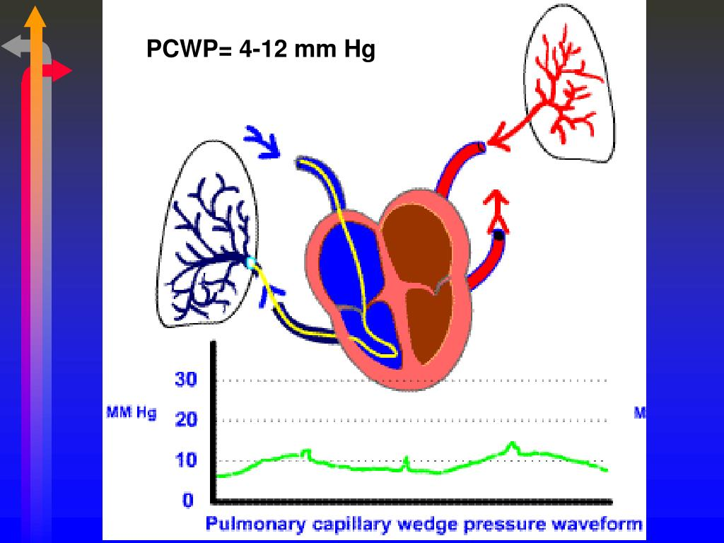 PCWP= 4-12 mm Hg