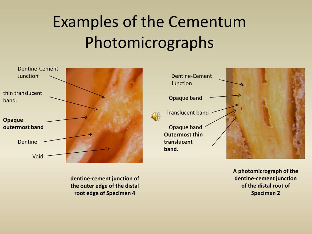 Examples of the Cementum Photomicrographs