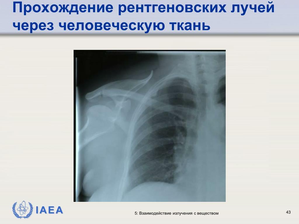 Прохождение рентгеновских лучей через человеческую ткань