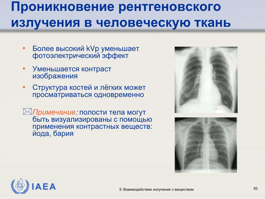 Проникновение рентгеновского излучения в человеческую ткань