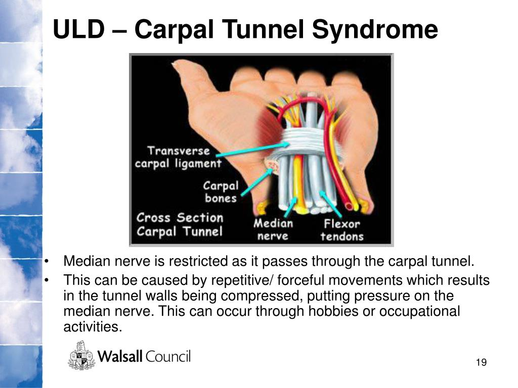 ULD – Carpal Tunnel Syndrome