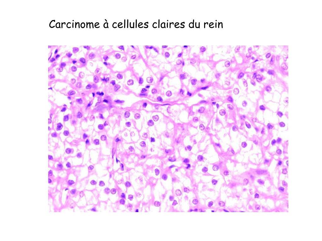 Carcinome à cellules claires du rein