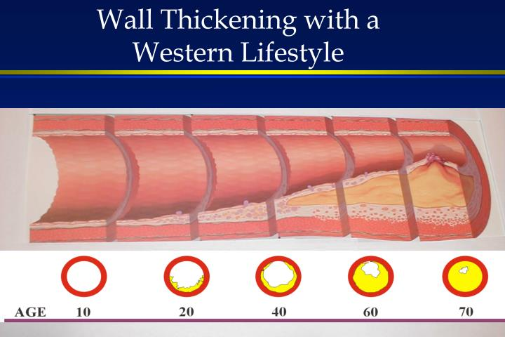Wall Thickening with a