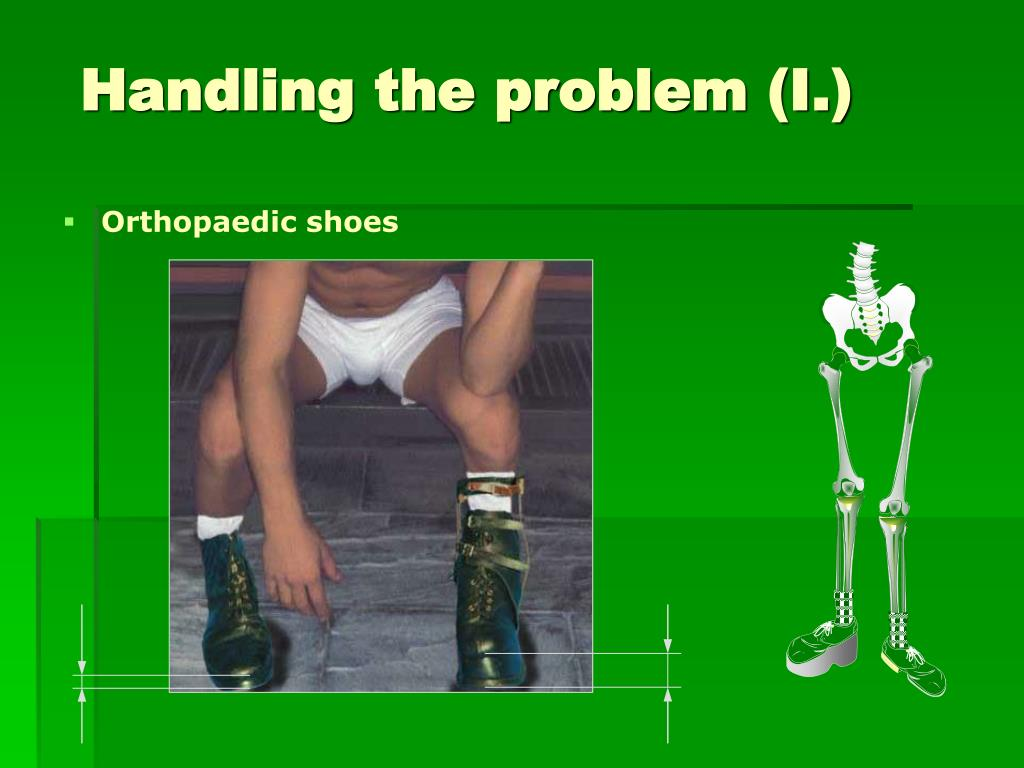 Orthopaedic shoes