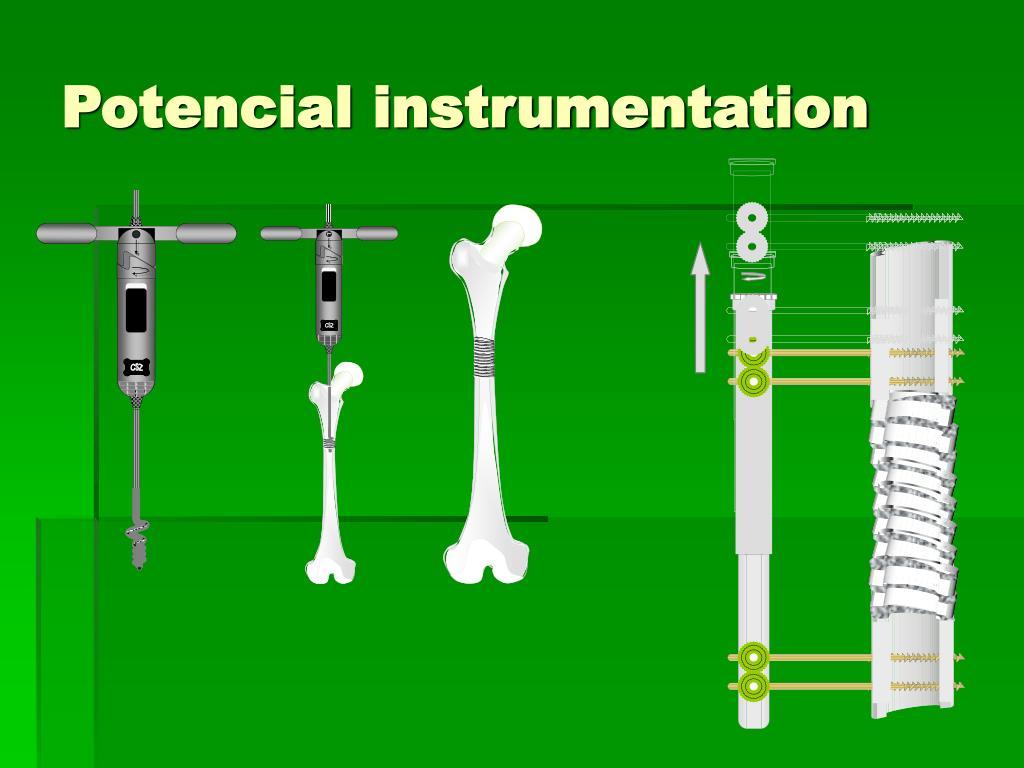 Potencial instrumentation