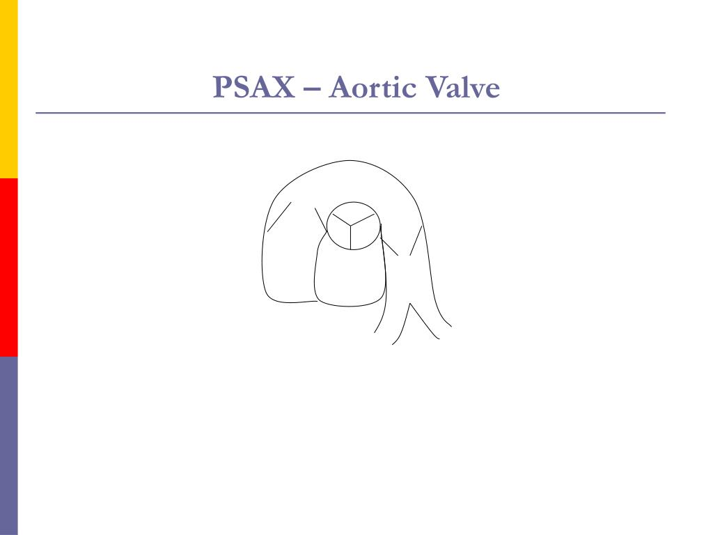 PSAX – Aortic Valve