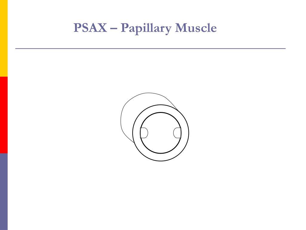 PSAX – Papillary Muscle