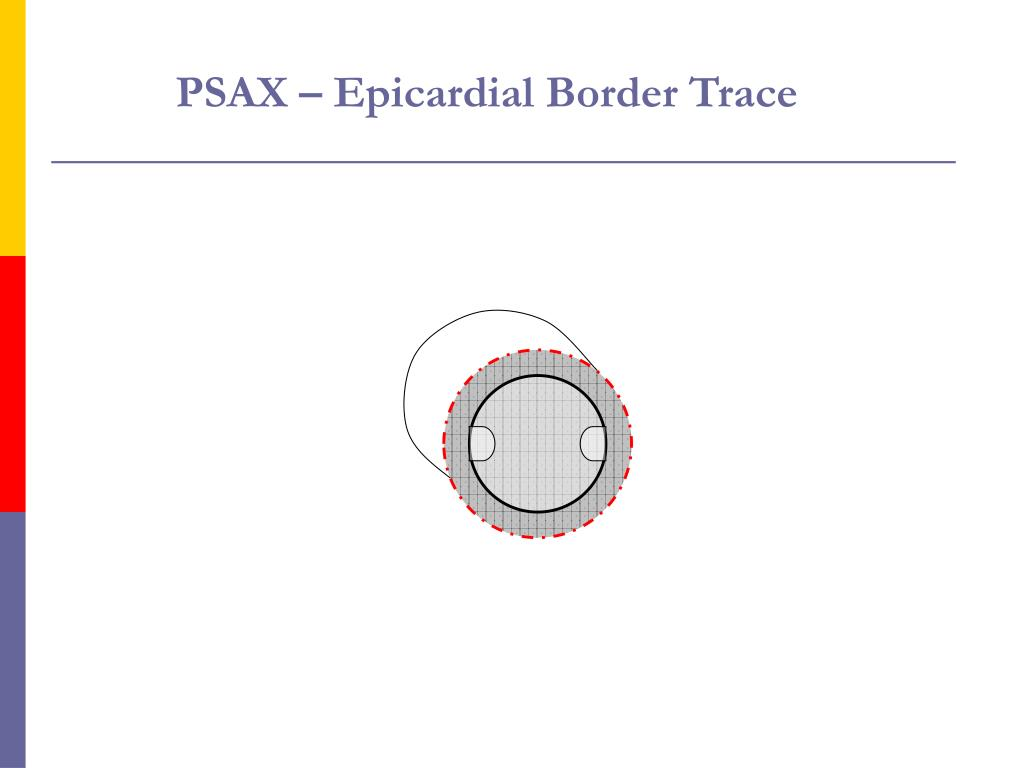PSAX – Epicardial Border Trace