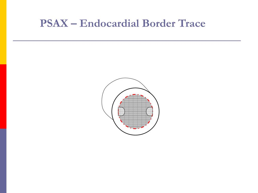 PSAX – Endocardial Border Trace