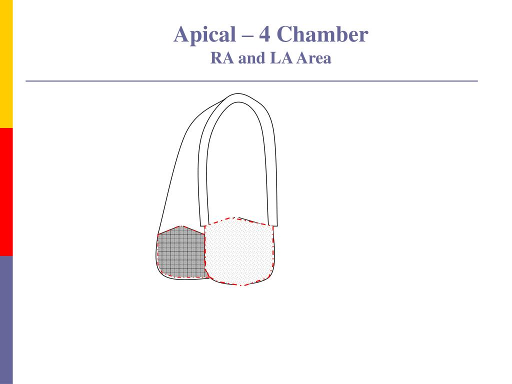 Apical – 4 Chamber