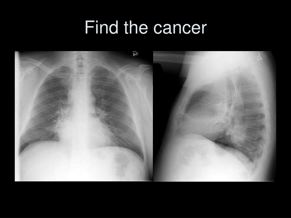 Find the cancer