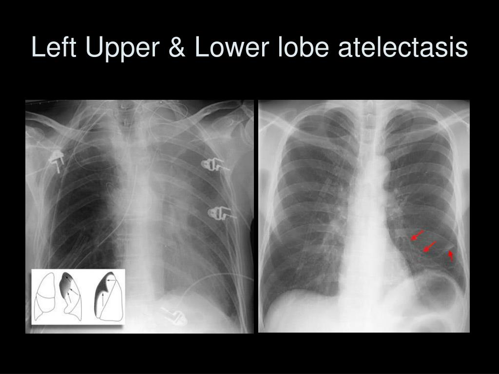 Left Upper & Lower lobe atelectasis