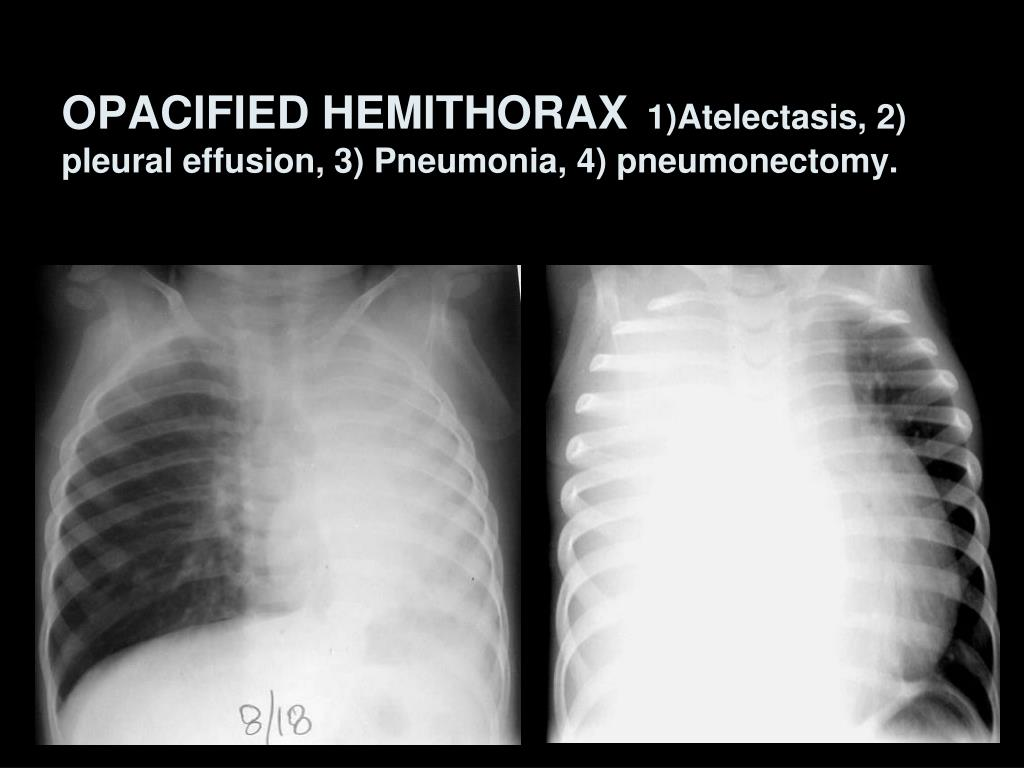 OPACIFIED HEMITHORAX