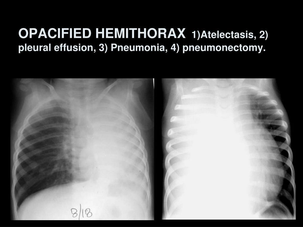 OPACIFIED HEMITHORAX