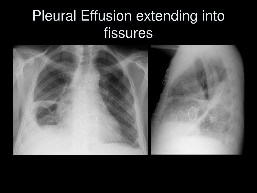 Pleural Effusion extending into fissures