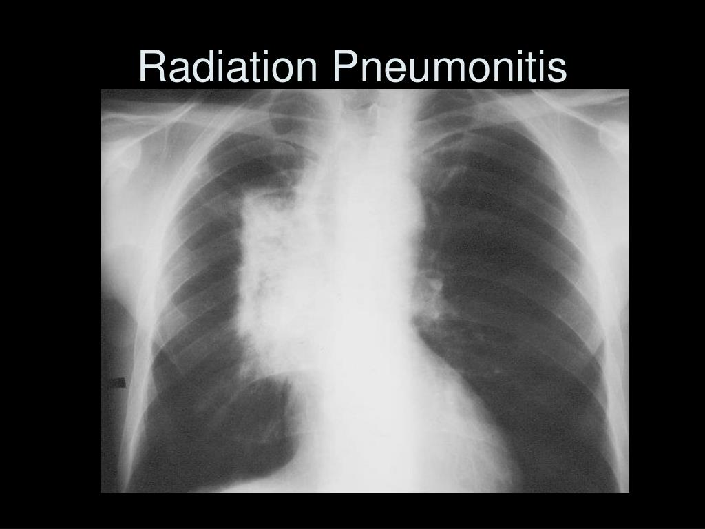 Radiation Pneumonitis