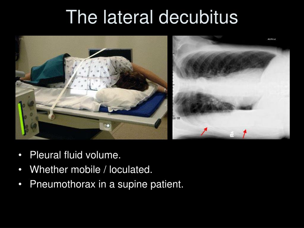 The lateral decubitus