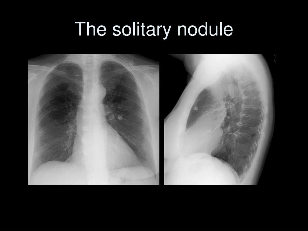 The solitary nodule