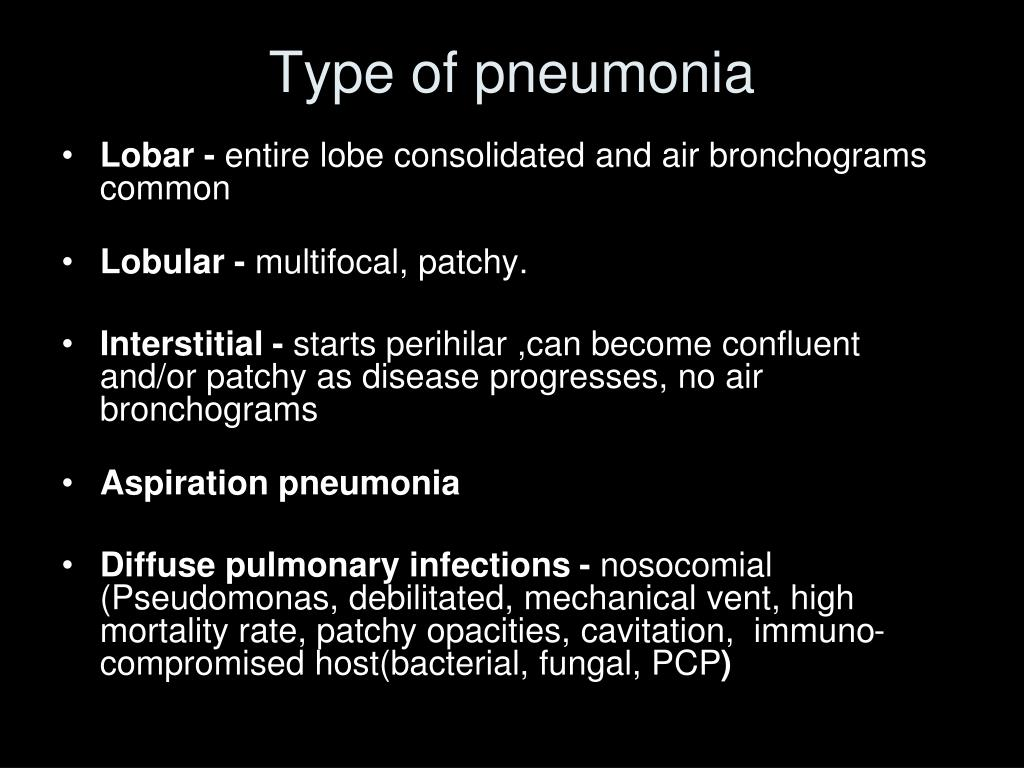 Type of pneumonia