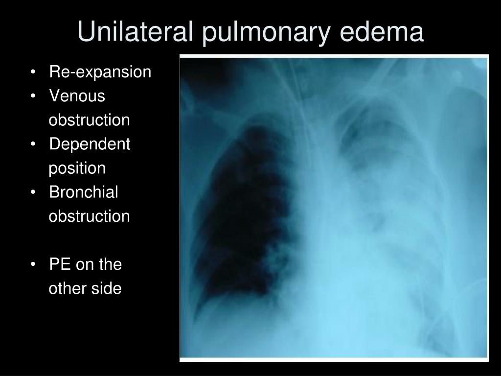 Unilateral pulmonary edema