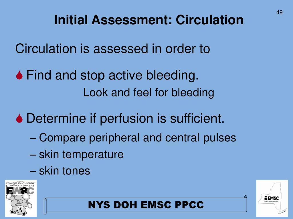 Initial Assessment: Circulation