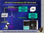 3d from conventional 2d ultrasound