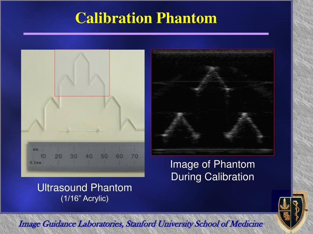 Calibration Phantom