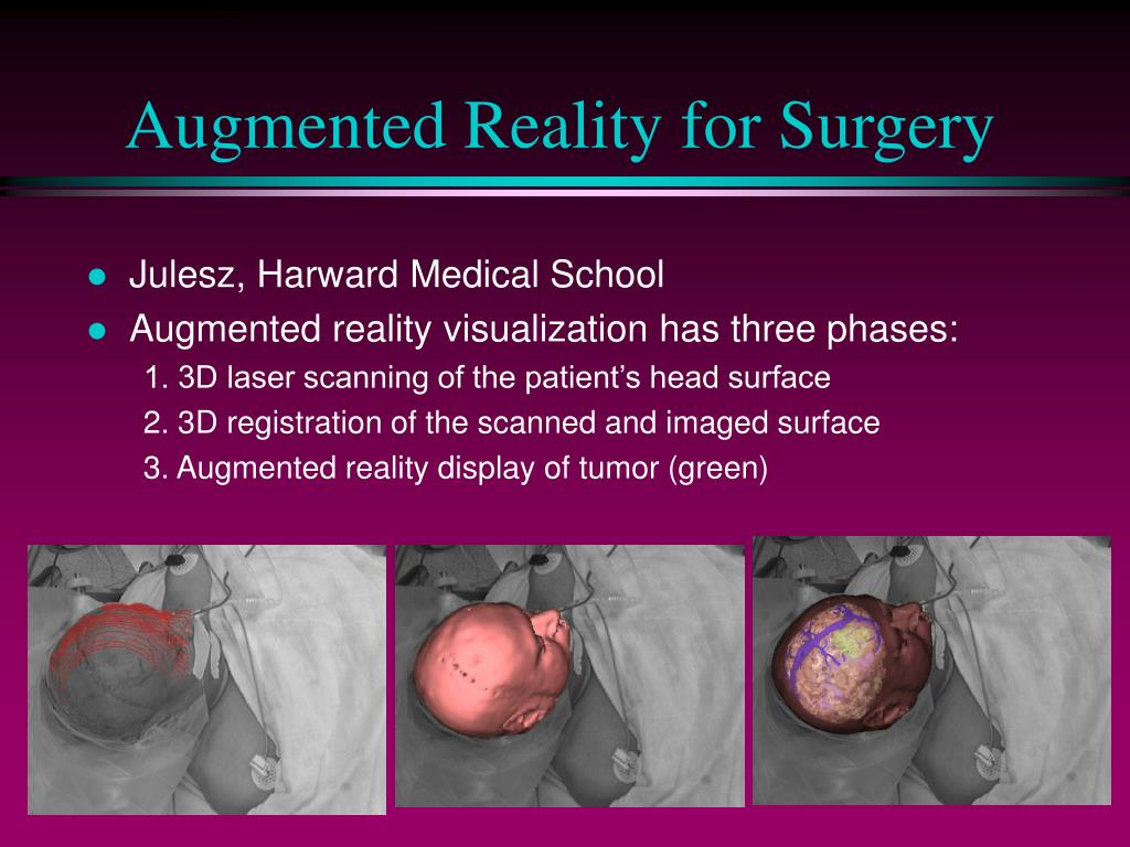 Augmented Reality for Surgery