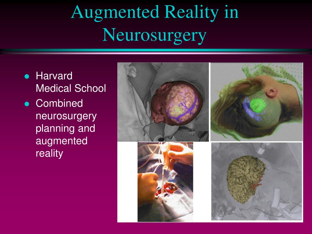 Augmented Reality in Neurosurgery