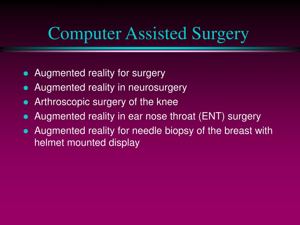 Computer Assisted Surgery