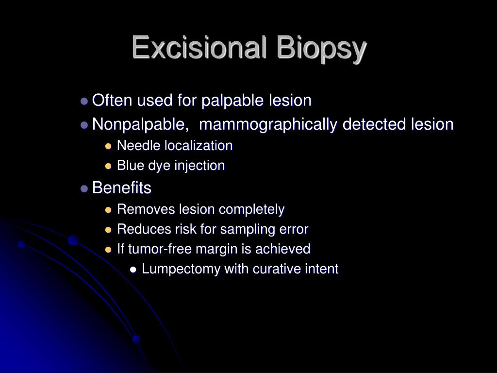 Excisional Biopsy