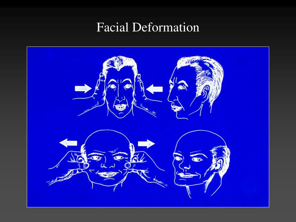 Facial Deformation
