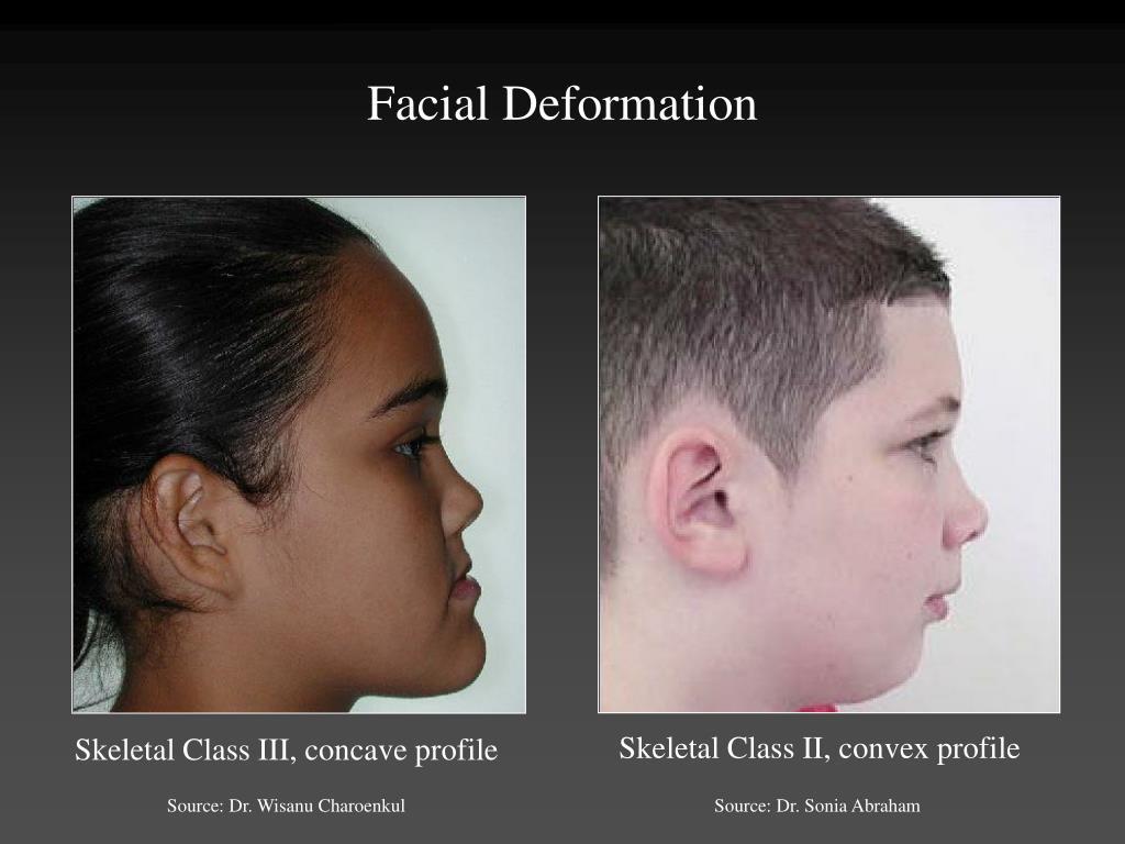Skeletal Class II, convex profile