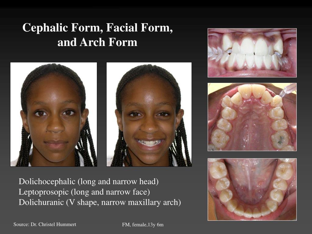 Cephalic Form, Facial Form,