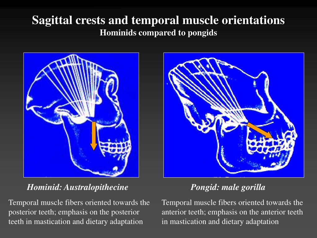 Hominid: Australopithecine
