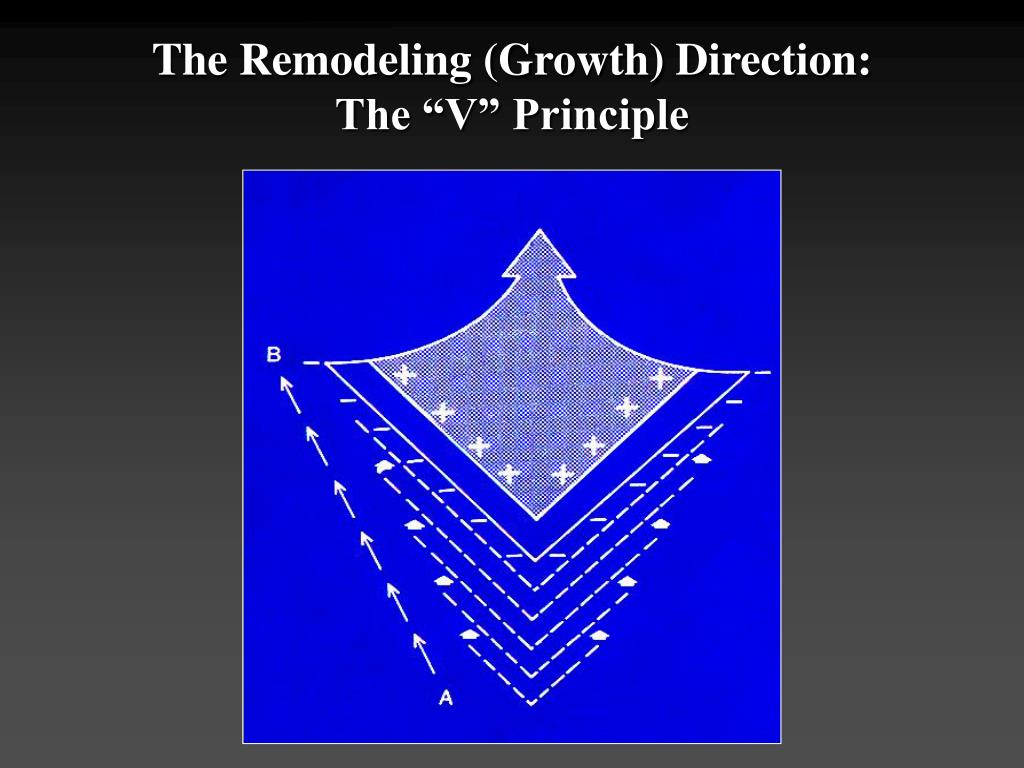 "The Remodeling (Growth) Direction: The ""V"" Principle"