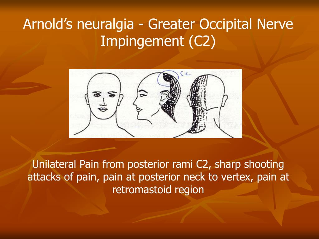 Arnold's neuralgia - Greater Occipital Nerve Impingement (C2)
