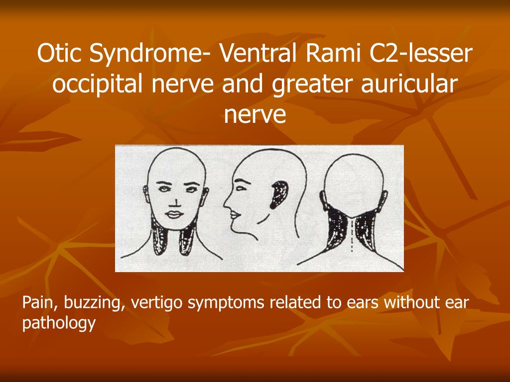 Otic Syndrome- Ventral Rami C2-lesser occipital nerve and greater auricular nerve