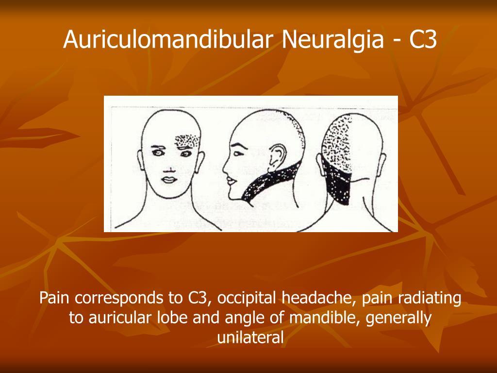 Auriculomandibular Neuralgia - C3