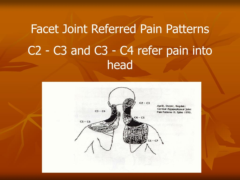 Facet Joint Referred Pain Patterns