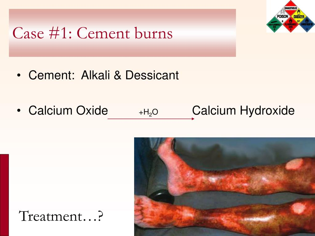 PPT - Chemical Burns PowerPoint Presentation - ID:590440