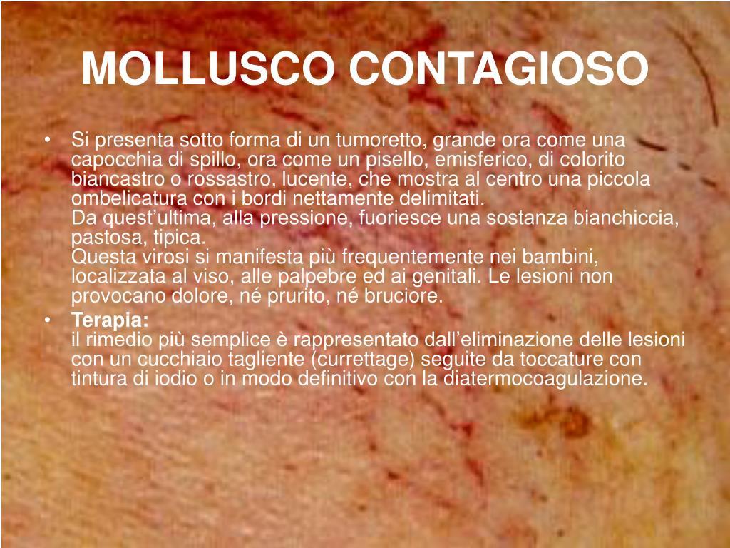 MOLLUSCO CONTAGIOSO