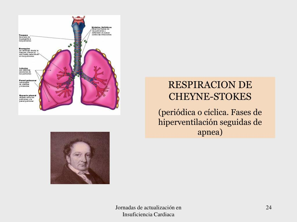 RESPIRACION DE CHEYNE-STOKES