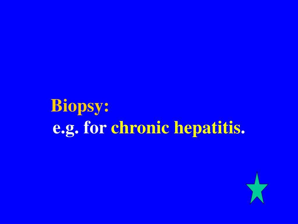 Biopsy: