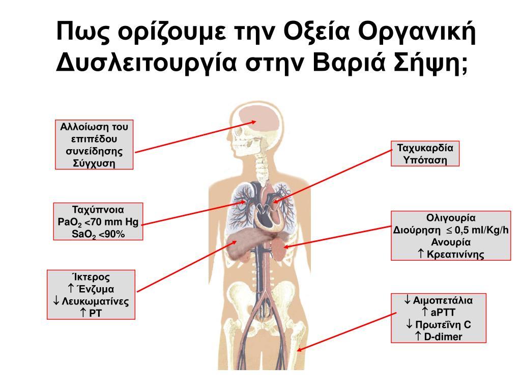 Πως ορίζουμε την Οξεία Οργανική Δυσλειτουργία στην Βαριά Σήψη;